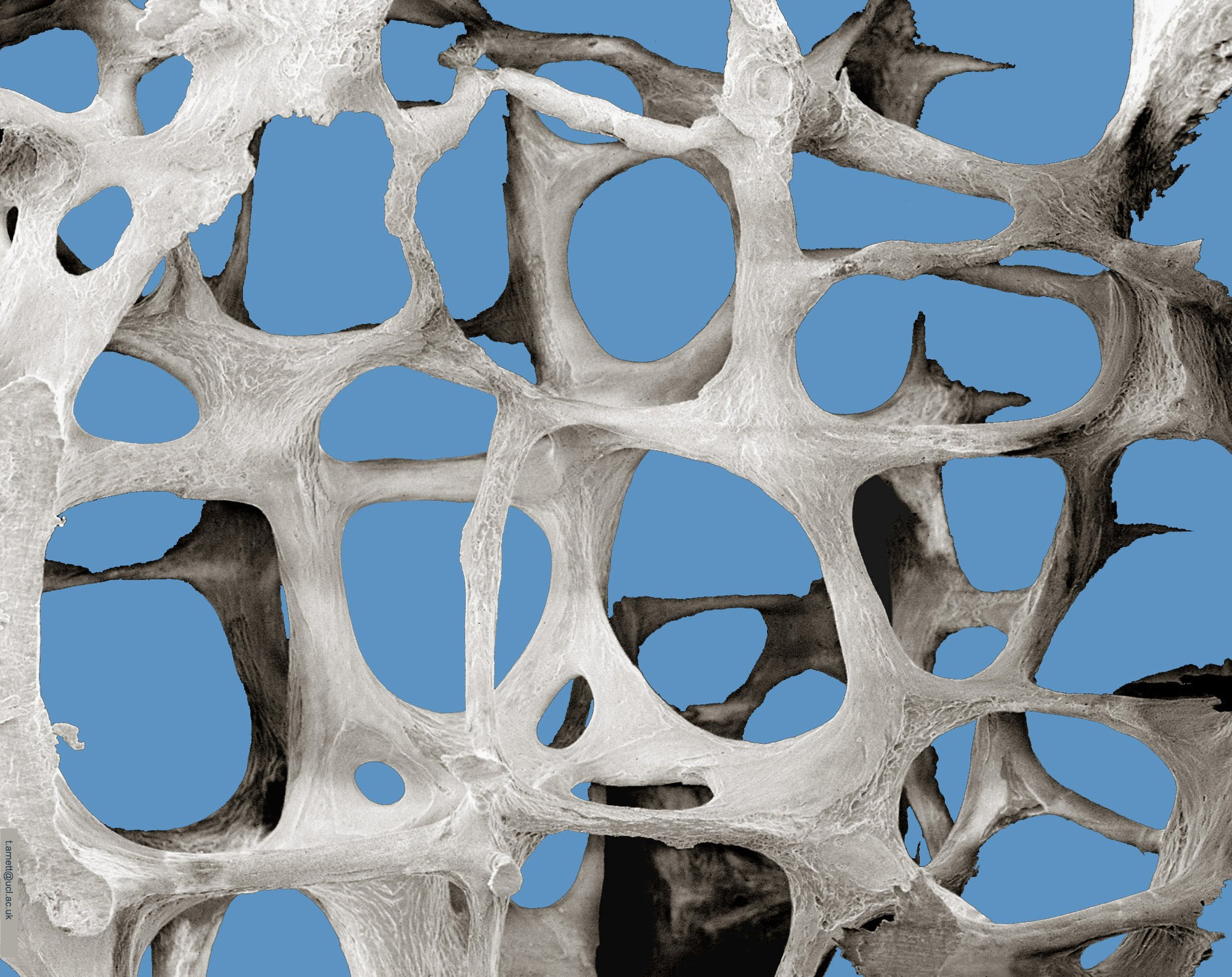 Scanning Electron Microscopy of osteoporotic bone